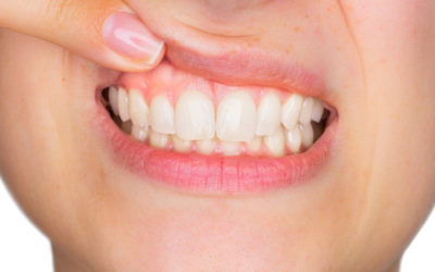 What is gingivitis and how is it treated?