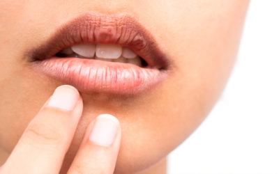 The dry mouth syndrome