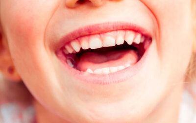 Tooth decay in children: frequently asked questions
