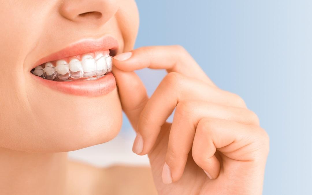 KIN غير مرئية تقويم الأسنان مدونة