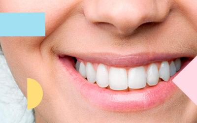 """¿Qué se conoce como """"sonrisa gingival""""?"""