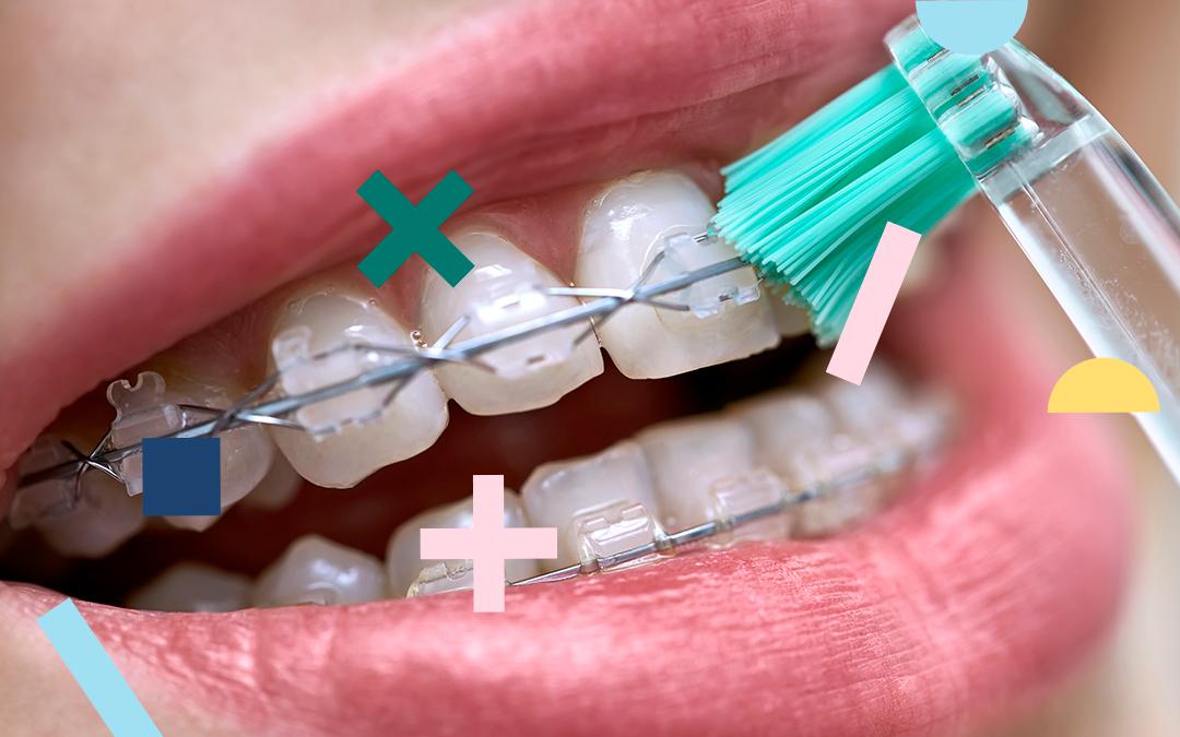 como mantener los dientes blancos con brackets